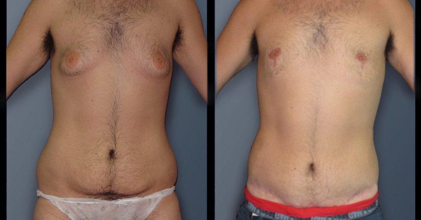 gyneco gr 4 body (3)