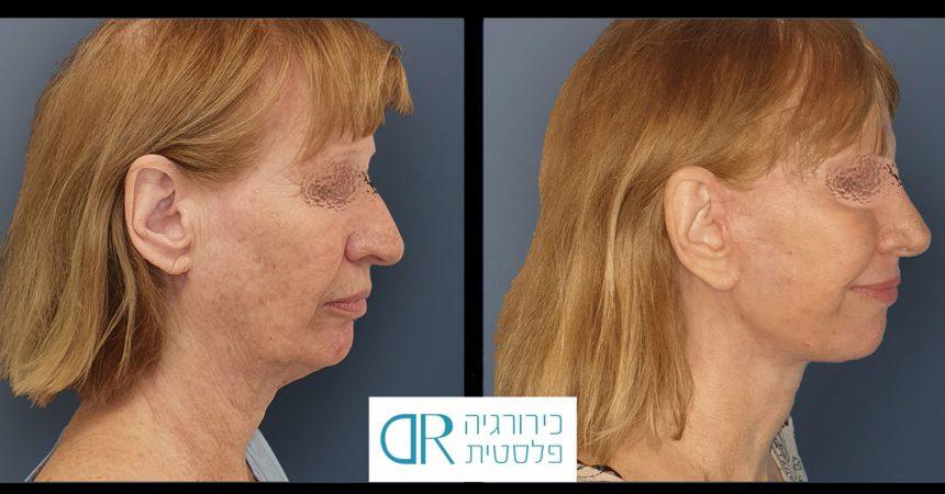 face-rhynoplasty-bleph-A1