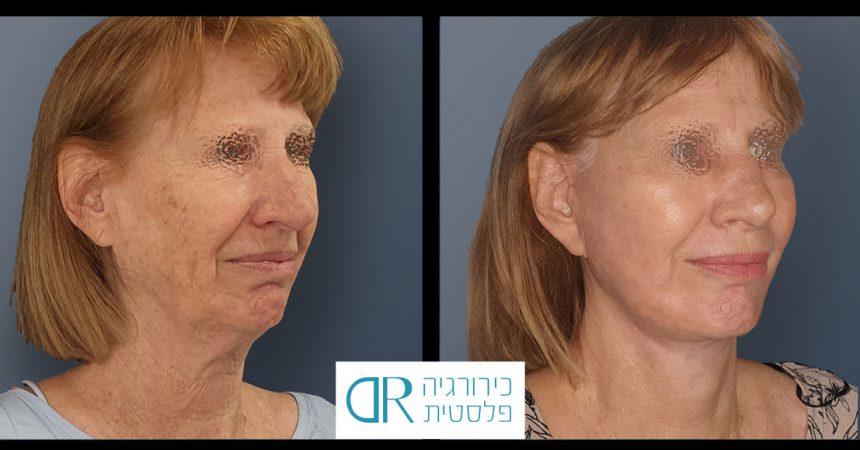face-rhynoplasty-bleph-A2