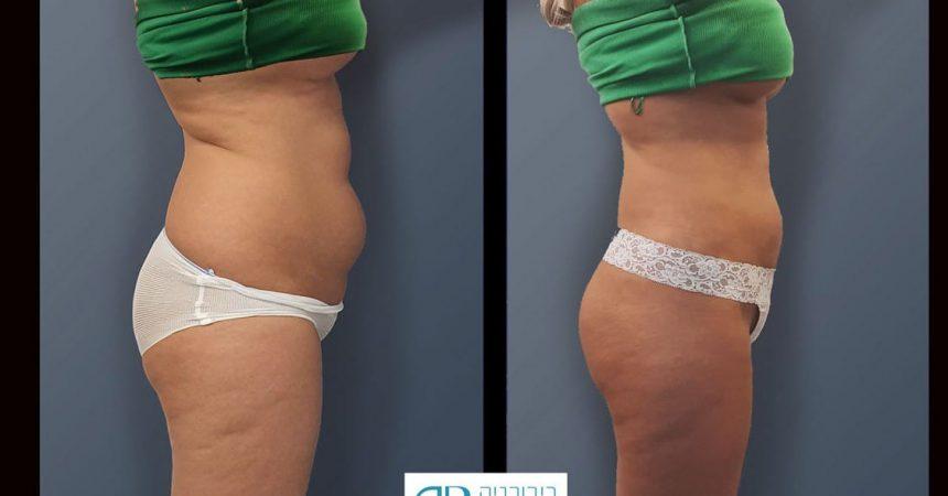 liposction-29-yo-female-flanks-abd--thigh-2A